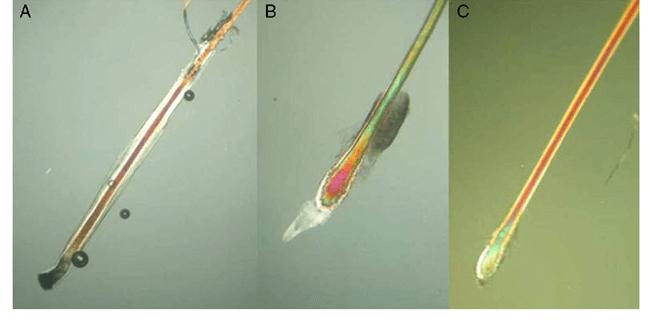 Come cambia la radice del pelo dalla fase Anagen (A), alla Catagen (B) alla Telogen (C).