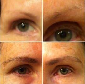 Otto mesi di uso del bimatoprost prima (sopra) e dopo (sotto).